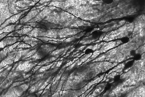 alucinar-neurona
